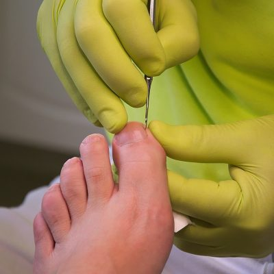 foot-care-3557103_1280
